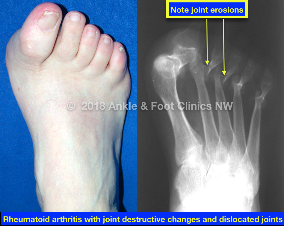 Rheumatoid Foot Everett Wa Podiatry